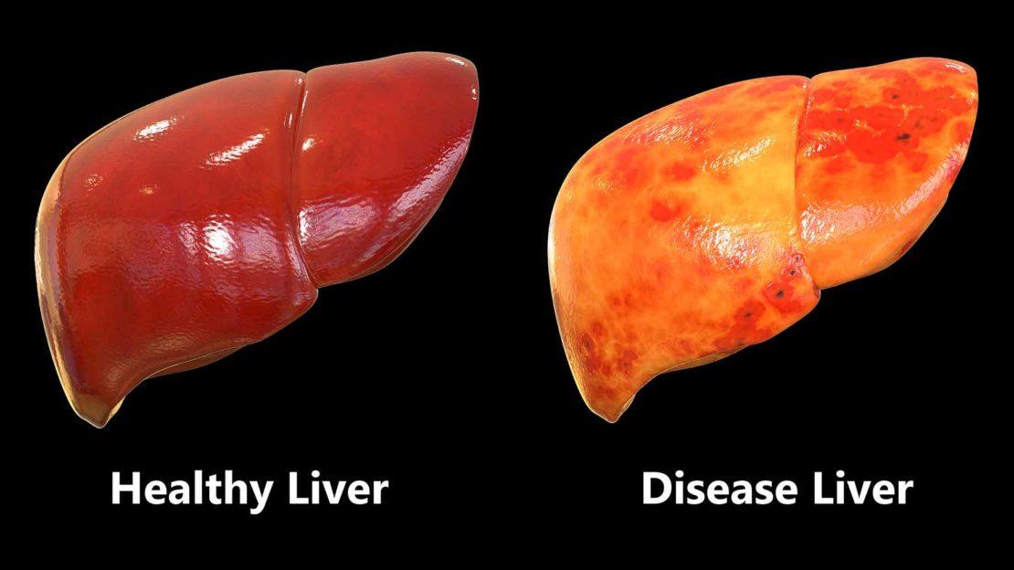 abdominal disease